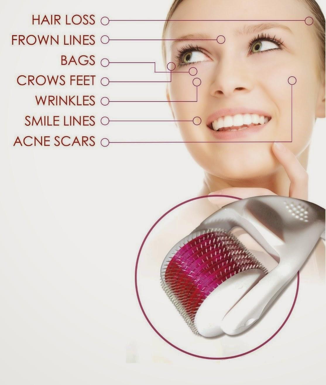 Open Pores Treatment Pakistan