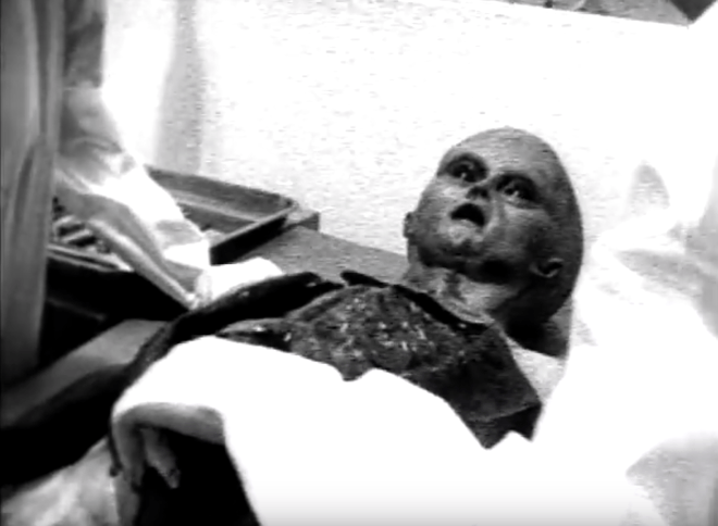 Alien autopsy, fake or reality?