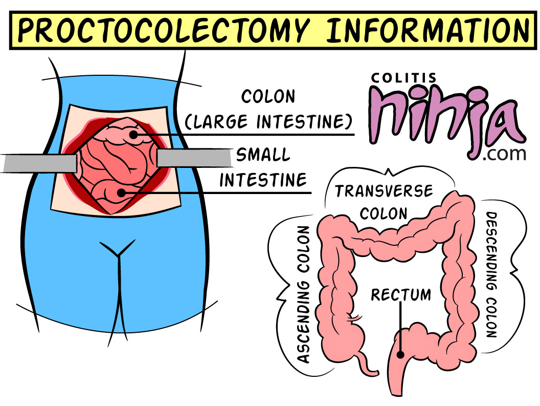 Colectomy Diet Best Diet View