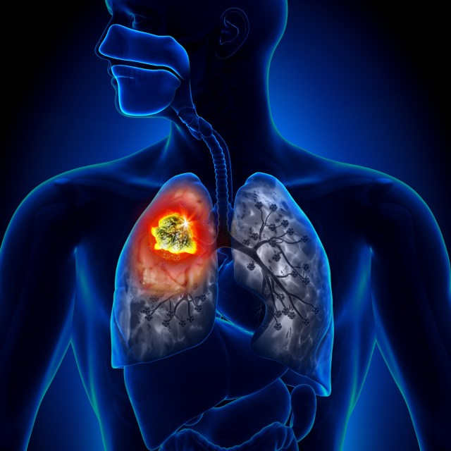 Lung Cancer - Tumor Detail Anatomy