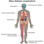 obesità, sindrome metabolica, complicanze del diabete