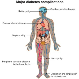 obesità, patologie associate all'obesità, sindrome metabolica, complicanze del diabete