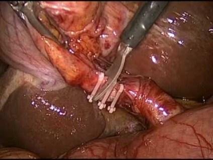 colecistectomia laparoscopica, laparoscopia