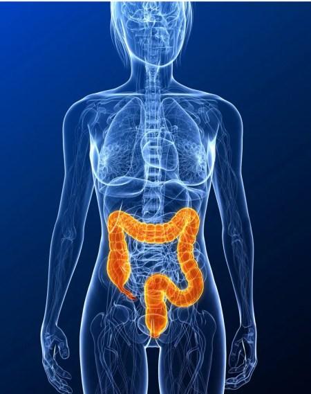 tumore del colon, cancro del colon, adenocarcinoma, carcinoma