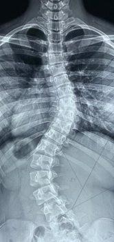 Radiografia panorâmica da coluna vertebral. Este é um dos exames mais utilizados para o diagnóstico da escoliose.