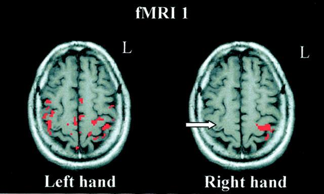 Human brain is 11% larger for left handed person. inresting isn't