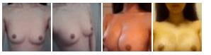 testimonianza lipofilling seno