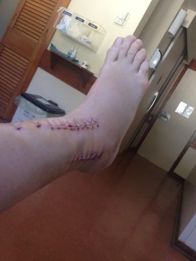 Meu pé no dia da alta