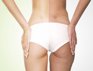 Comment perdre sa cellulite