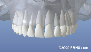 A depiction of the upper jaw with all normal teeth