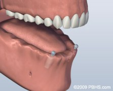 A mouth with the lower jaw with two implants and no bottom teeth