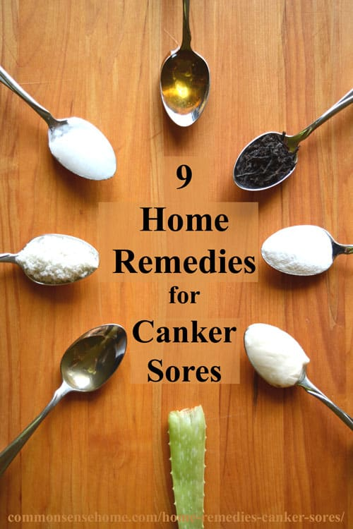 Do You Ever Wish Someone Would Just Take The Time To Tell You The Difference Between Canker Sores And Herpes? 1