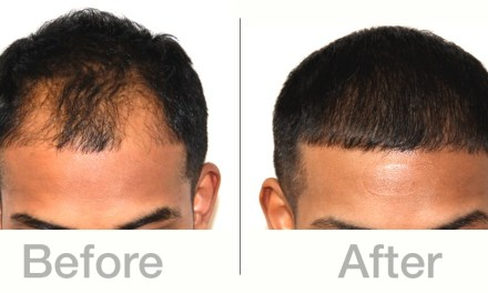 Dr. Keene with Physician's Hair Institute: A Pioneer in Hair Transplant Techniques