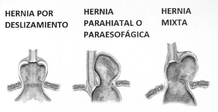 Se pueden producir tres tipos de hernias hiatales, mixtas, por deslizamiento o paraesofagicas