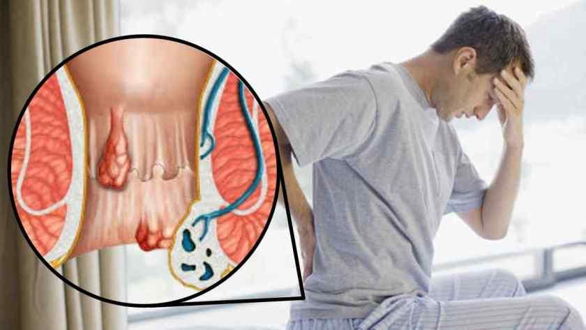 Como Tratar Hemorroida Inflamada