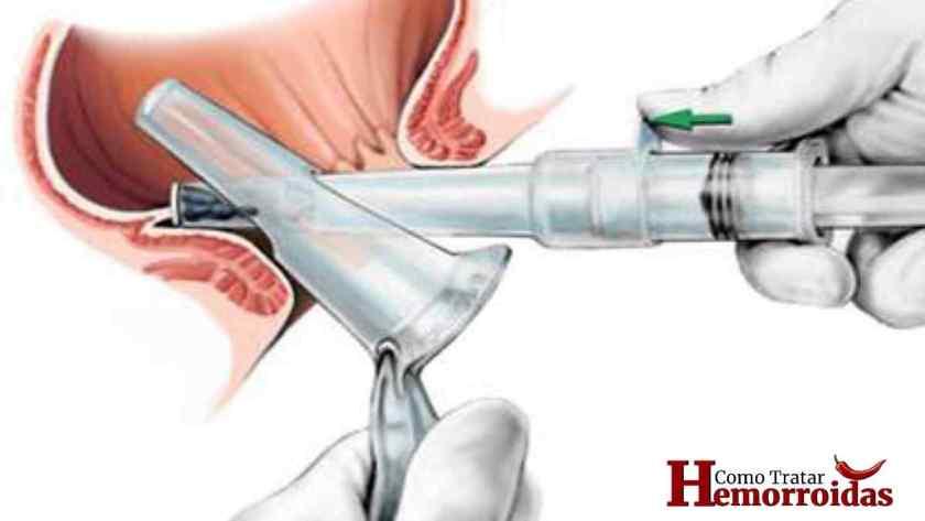cirurgia de hemorroida