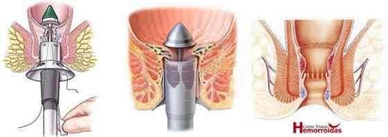 Hemorroida externa tratamento cirúrgico