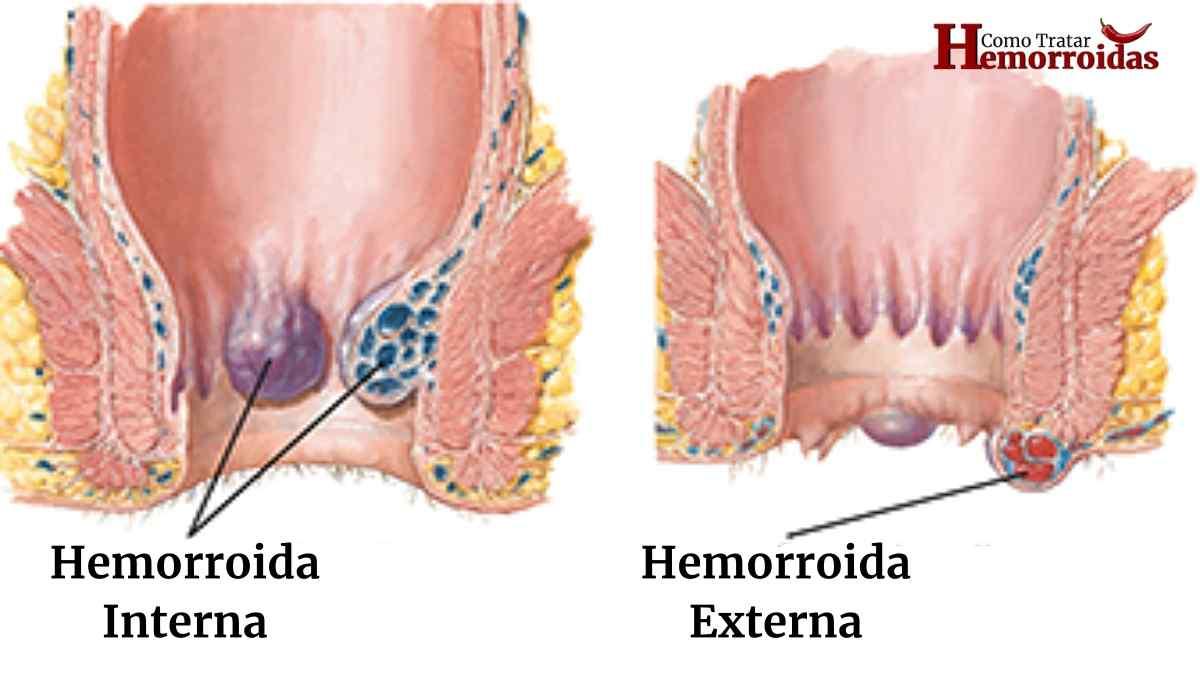 Sintomas de hemorroidas internas, externas e na gravidez