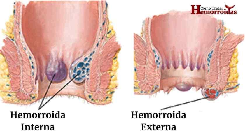Sintomas de hemorroidas na gravidez