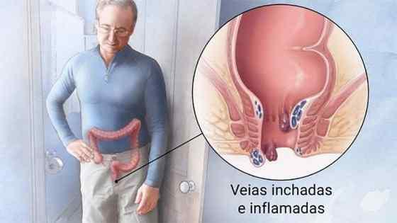 Sintomas de hemorroida