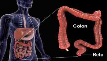 hemorroida pode virar cancer