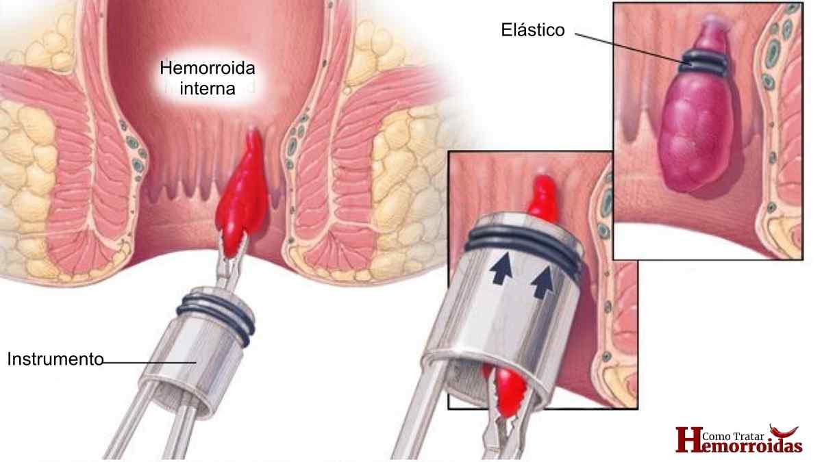 Como é feita a ligadura elástica de hemorroidas?