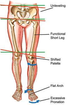 Lack of foot stability can cause back pain