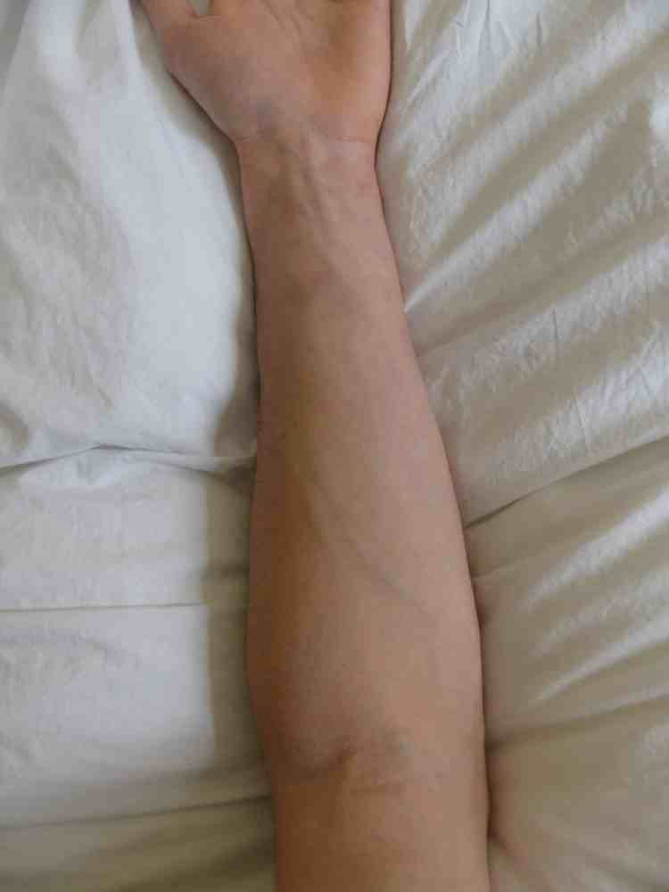 Avant-bras avant avoir gratté