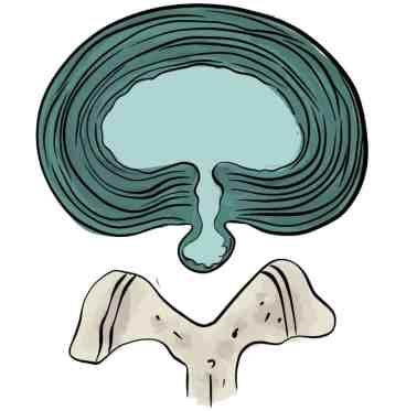 Hernie exclue ou extrusion discale vue latérale