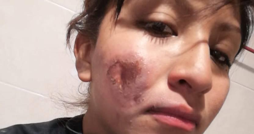 mujer policia quemadura rostro - Mujer policía resulta herida con quemadura en el rostro durante marcha en el Día Internacional de la Mujer - #Noticias