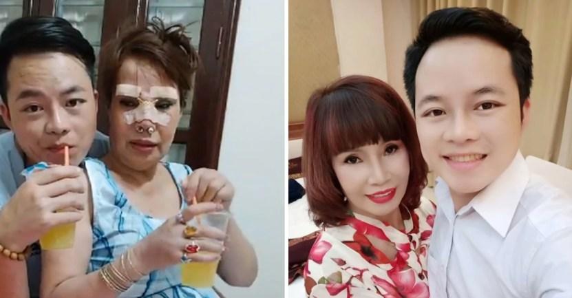 """vietnamita - Mujer de 62 años se casó con hombre de 26 y se operó para """"verse más joven"""". Una cirugía millonaria"""