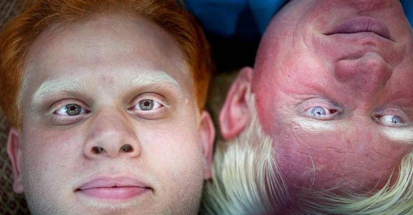 """Captura de Pantalla 2021 01 22 a las 13.11.50 - 14 fotografías de """"Skin Project"""": Una serie de retratos de albinos y mujeres quemadas con ácido"""
