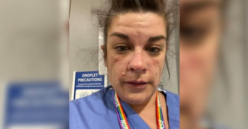 """enfermera llora covid - """"Este fue el momento en que colapsé"""": Enfermera primera línea enseña su cara tras turno en hospital"""