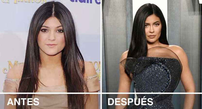 famosos antes despues - 22 impactantes cambios de los famosos antes y después del éxito. Rihanna derrocha elegancia