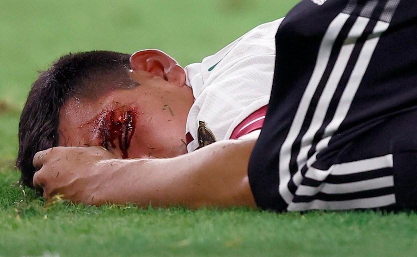 """063 1328075824 crop1625978674574.jpg 242310155 - """"Chucky"""" Lozano sale del juego de la Copa Oro"""