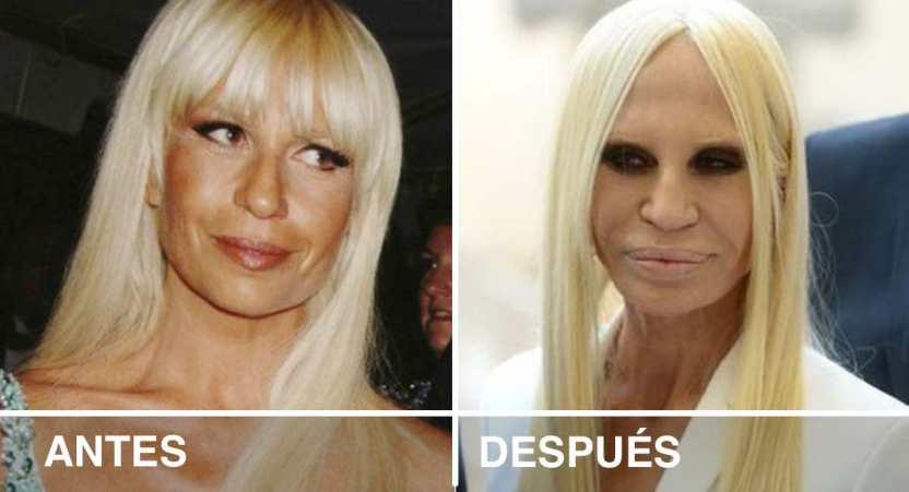 """famosos cambiar apariencia - Así lucían 16 famosos antes de que decidieran cambiar su apariencia para verse """"mejor"""""""
