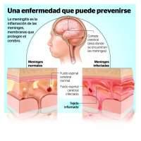 Día internacional de la meningitis