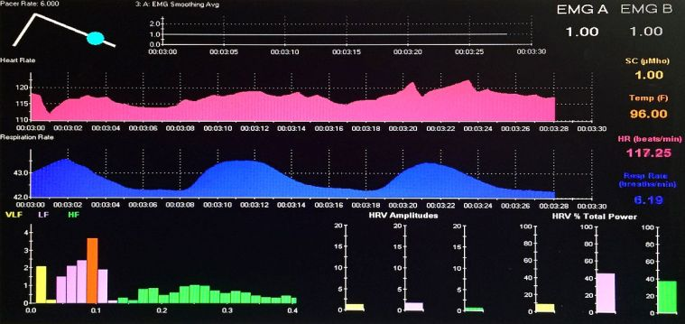 Heart rate variability screen grab showing peak HRV amplitude of less than 5