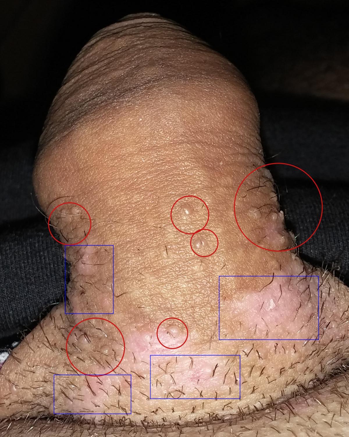 Condylomes – J'ai eu un papillomavirus  – Témoignage homme