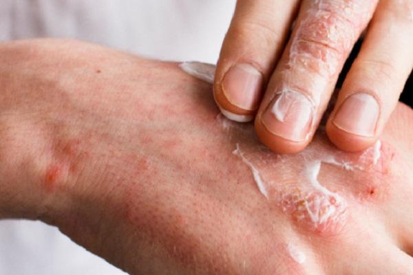 Cremas para infecciones en la piel