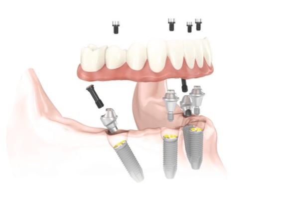 implantes dentales, all on four