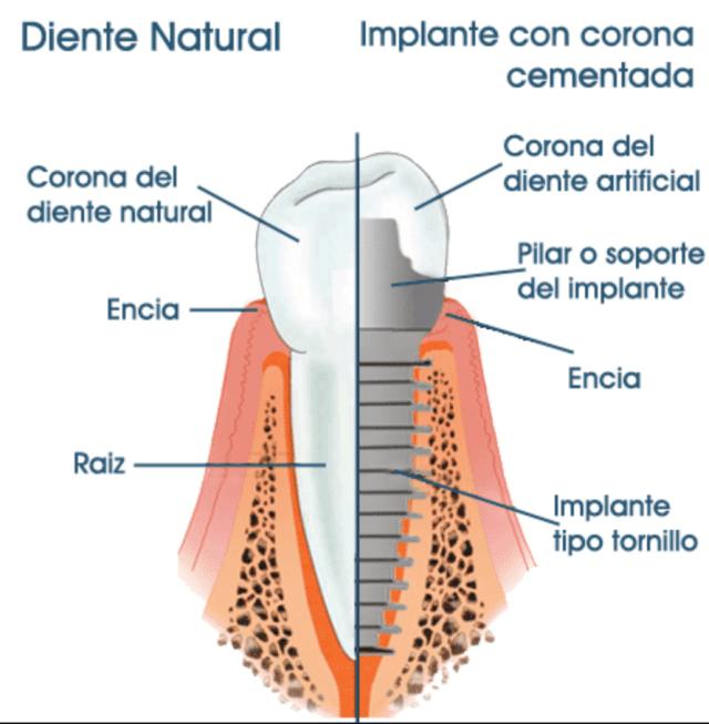 Distintas partes de un implante dental en costa rica