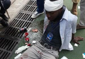 V.Club-DCMP : le journaliste Fiston Mokili blessé à la tête au stade des Martyrs