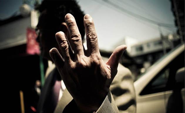 Yakuza con el dedo amputado