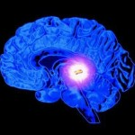 New Insight: Alzheimer's Disease Linked to Pineal Gland Calcification from Fluoride
