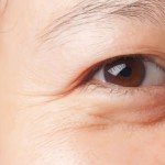 13 Ways for How to Get Rid of Bags Under the Eyes