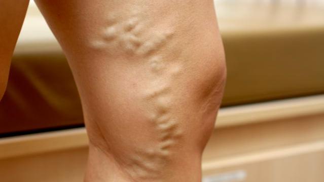varicose veins nutritional deficiency