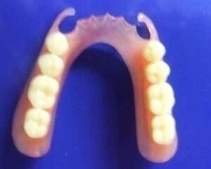 perte de poids après des prothèses dentaires immédiates