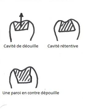 depouille-001