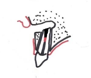 Obturation retrograde du canal radiculaire.